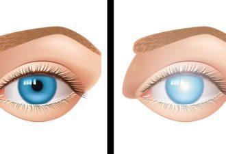 oslepli