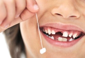 sohraniat-molochnye-zuby5