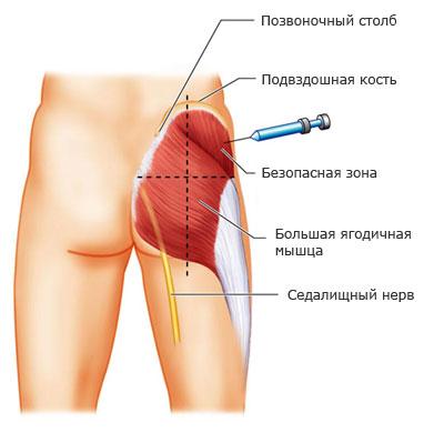 kak_pravilno_delat_inekcii_vazhnaya_informaciya__kaifzona_ru
