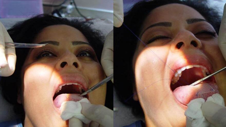 nelepie-plasticheskie-operacii-1