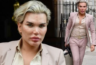 10 Apr 2017 - London  - Uk  The Human Ken Doll pictured arriving at a Harley st clinic and spending 3 hours inside getting botox and fillers.  BYLINE MUST READ : XPOSUREPHOTOS.COM  ***UK CLIENTS - PICTURES CONTAINING CHILDREN PLEASE PIXELATE FACE PRIOR TO PUBLICATION ***  UK CLIENTS MUST CALL PRIOR TO TV OR ONLINE USAGE PLEASE TELEPHONE   44 208 344 2007