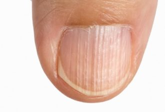 Vertical ridges on the fingernails symptoms deficiency  vitamins and minerals