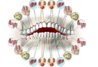 Every-Tooth-is-Connected-to-an-Organ-in-Your-Body-Tooth-Aches-Predict-Organ-Problems